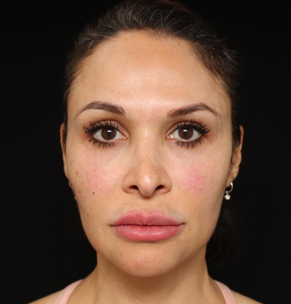 Dermal-fillers-Jaw-After-s