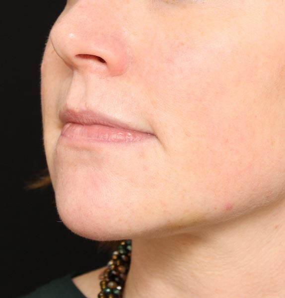 Chin-jawline-dermal-fillers-after-s