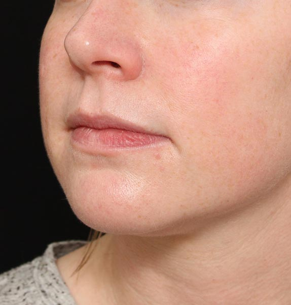 jawline dermal fillers before