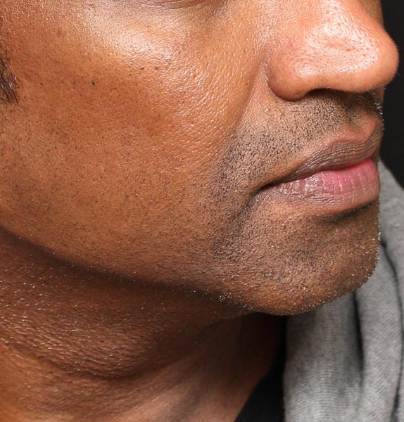 Jawline-after-dermal-fillers