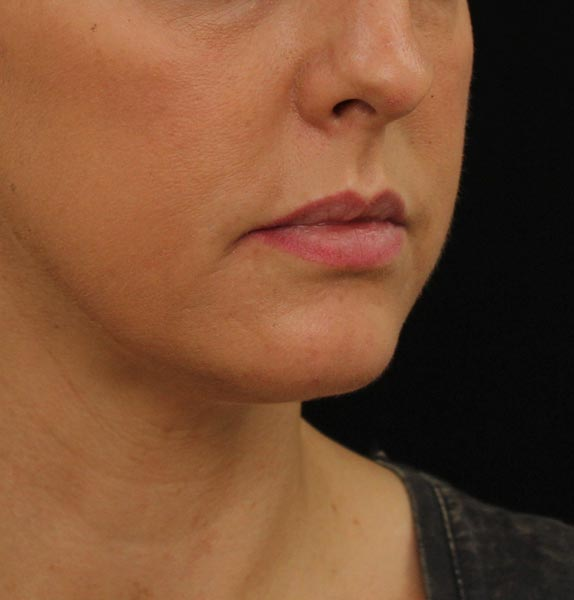 Lip-dermal-fillers-before-a