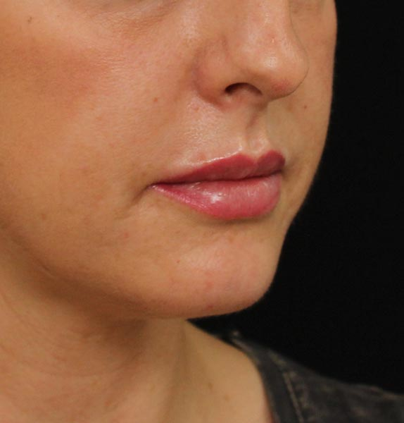 Lip-filler-after-