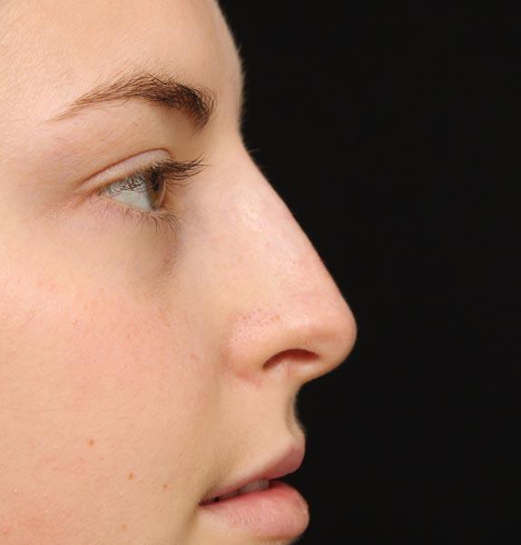 Nose-before-dermal-fillers-2