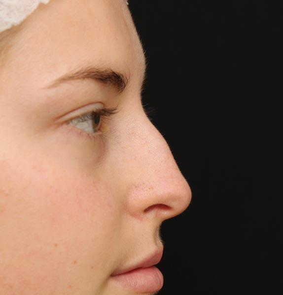 Nose-before-dermal-fillers
