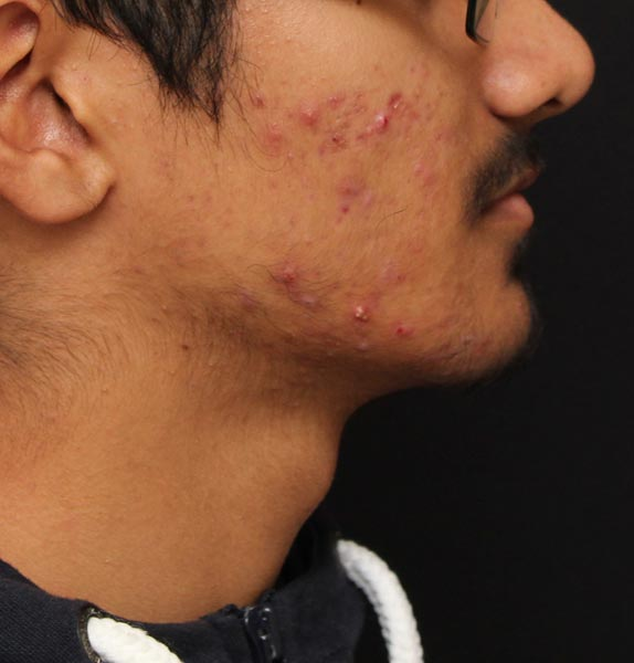 IS-CLINICAL-SKINCARE-ACNE-BEFORE-s