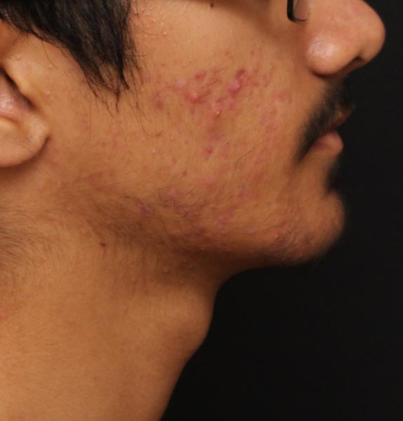 IS-CLINICAL-SKINCARE-ACNE-BEFORE-a