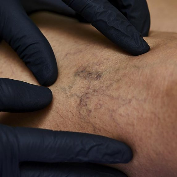 Spider Veins / Thread Veins